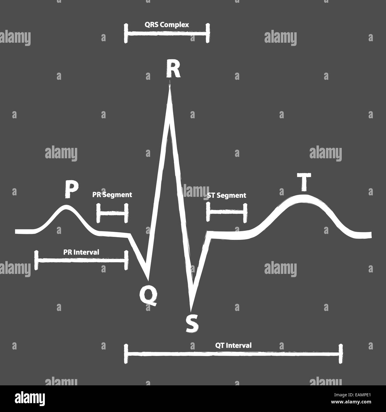 Treadmill Stress Test Negative: Electrocardiogram Machine Stock Photos & Electrocardiogram