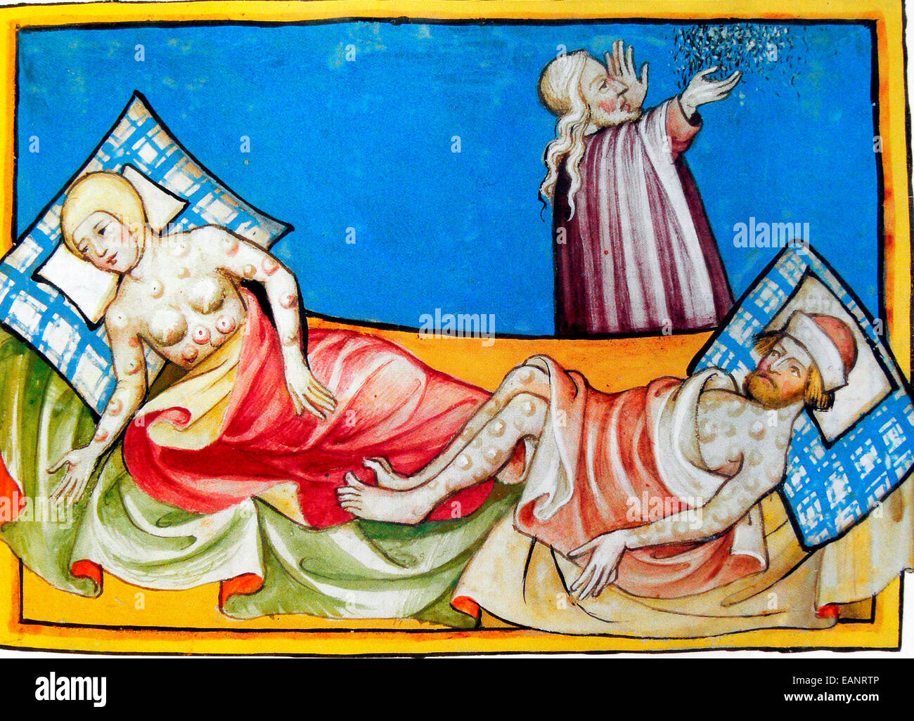 Miniature out of the Toggenburg Bible (Switzerland) of 1411. The disease is  widely believed to be the plague. The location of bumps or blisters,  however, ...