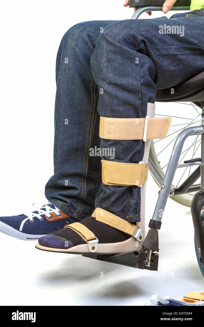 Orthopedist puts orthosis to patient in wheelchair with disabilities - Stock Image