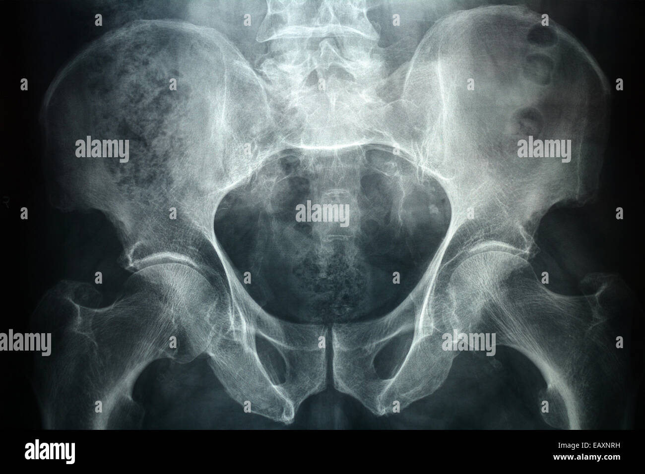 Xray of a male pelvic, it's a high resolution 24 mp photo not a scan. - Stock Image