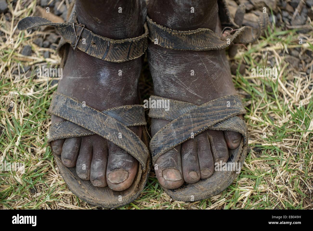 Dirty feet of an ethiopian teenager, Ethiopia - Stock Image
