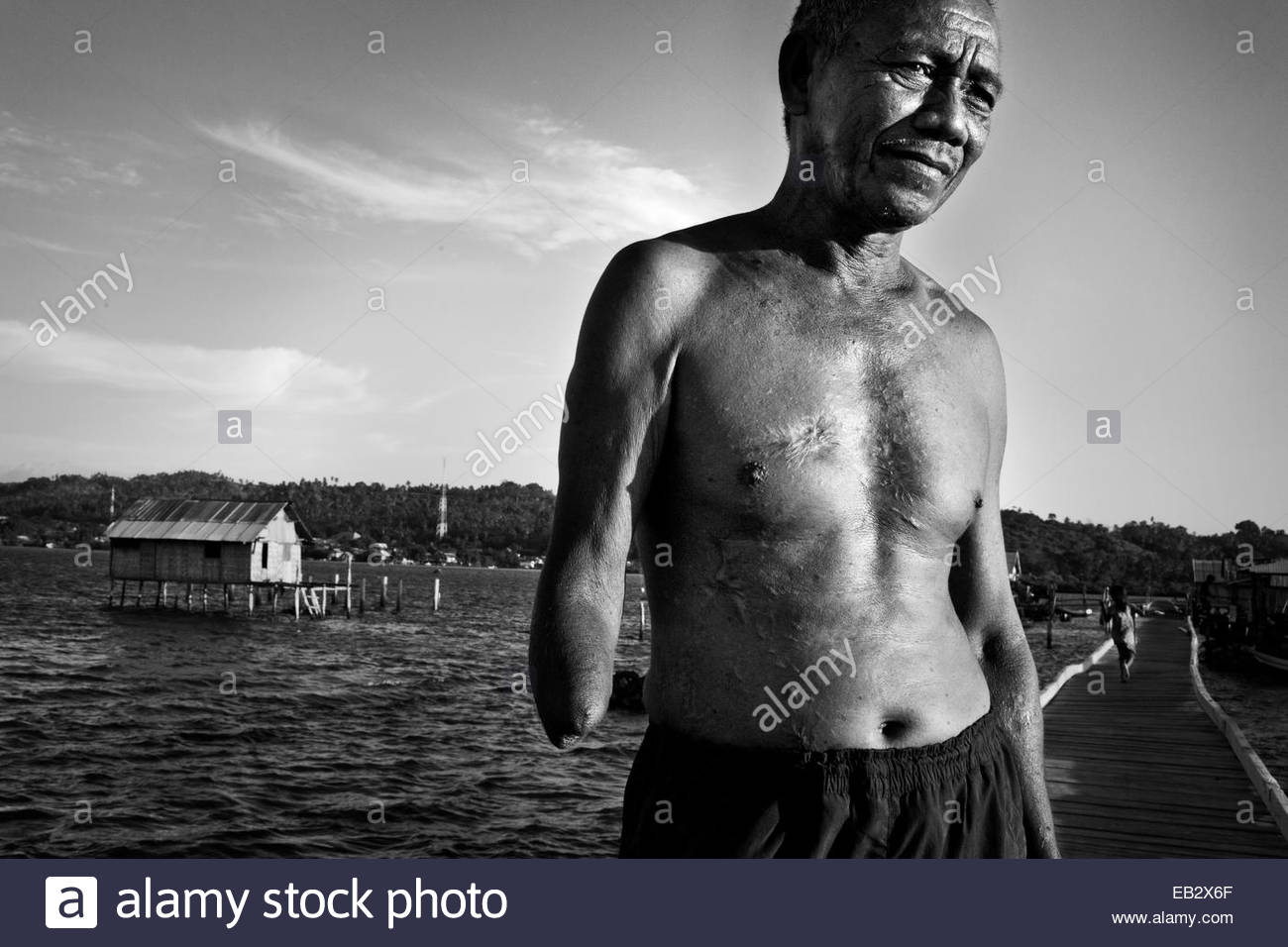 A Bajo man who lost his arm and blew up most of his stomach in a bomb fishing accident. - Stock Image