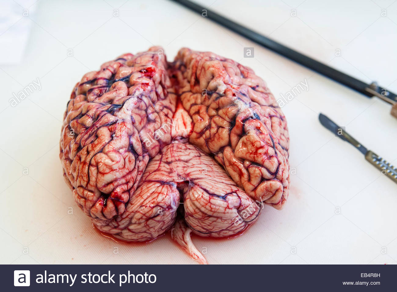 Human brain before a autopsy to determine the cause of death Stock ...