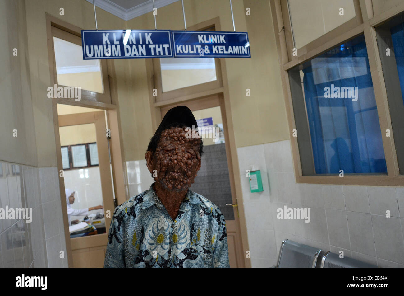 Slamet, 59, is believed to be suffering from neurofibromatosis. Genetic condition which causes uncontrollable growths - Stock Image