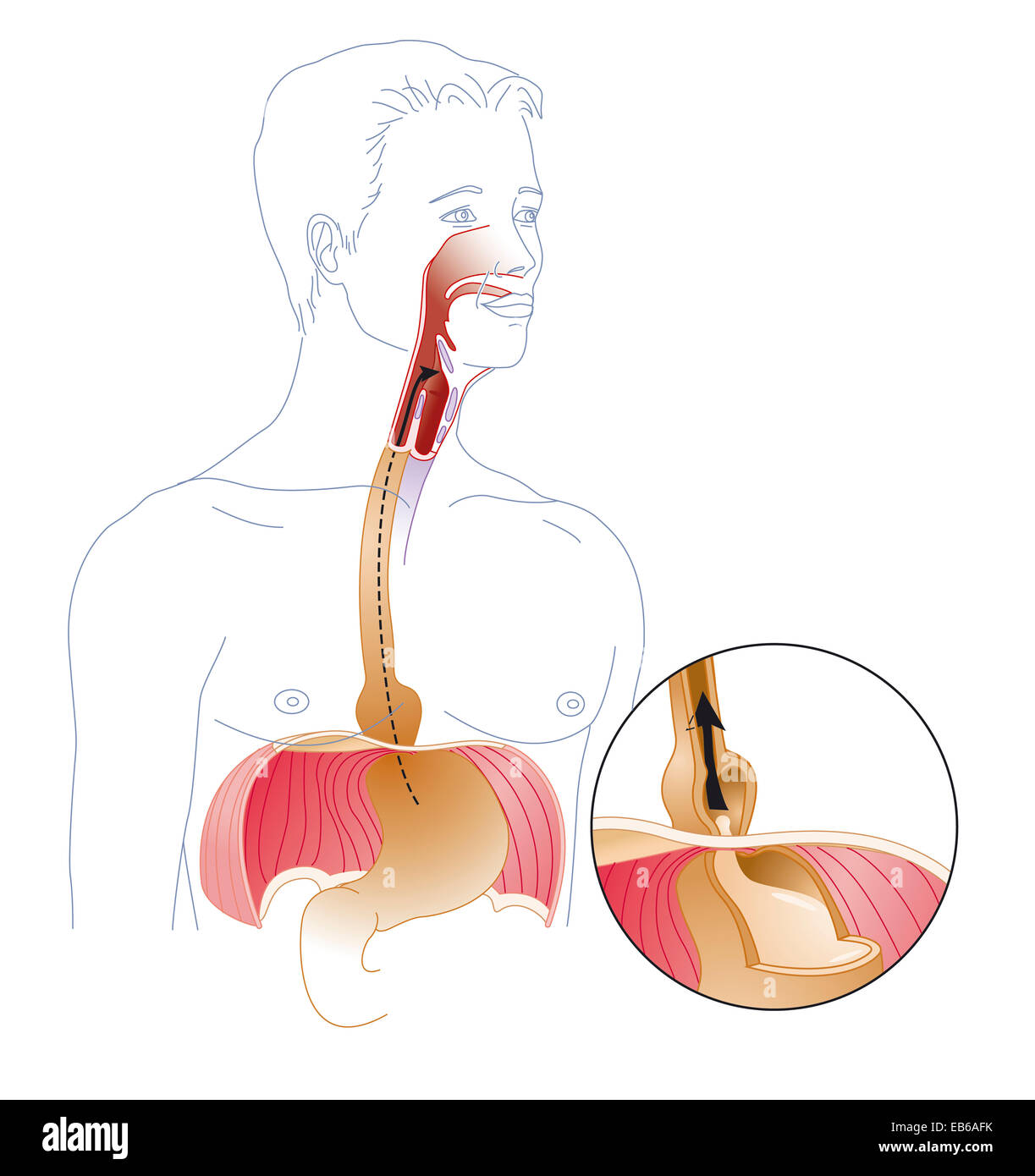 Hiatus Hernia Stock Photos & Hiatus Hernia Stock Images ...