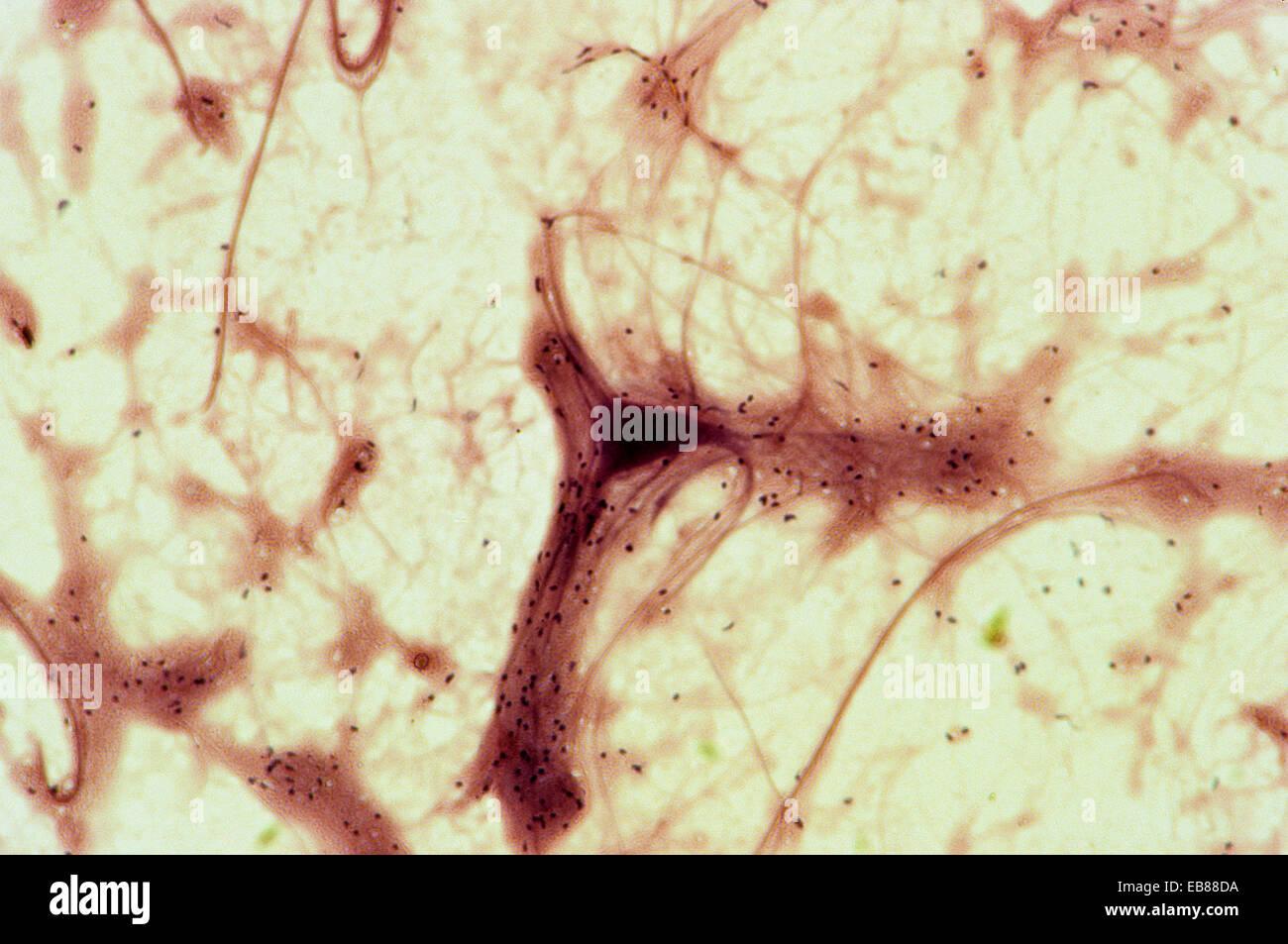 Neuron, nerve cells, 400 X - Stock Image