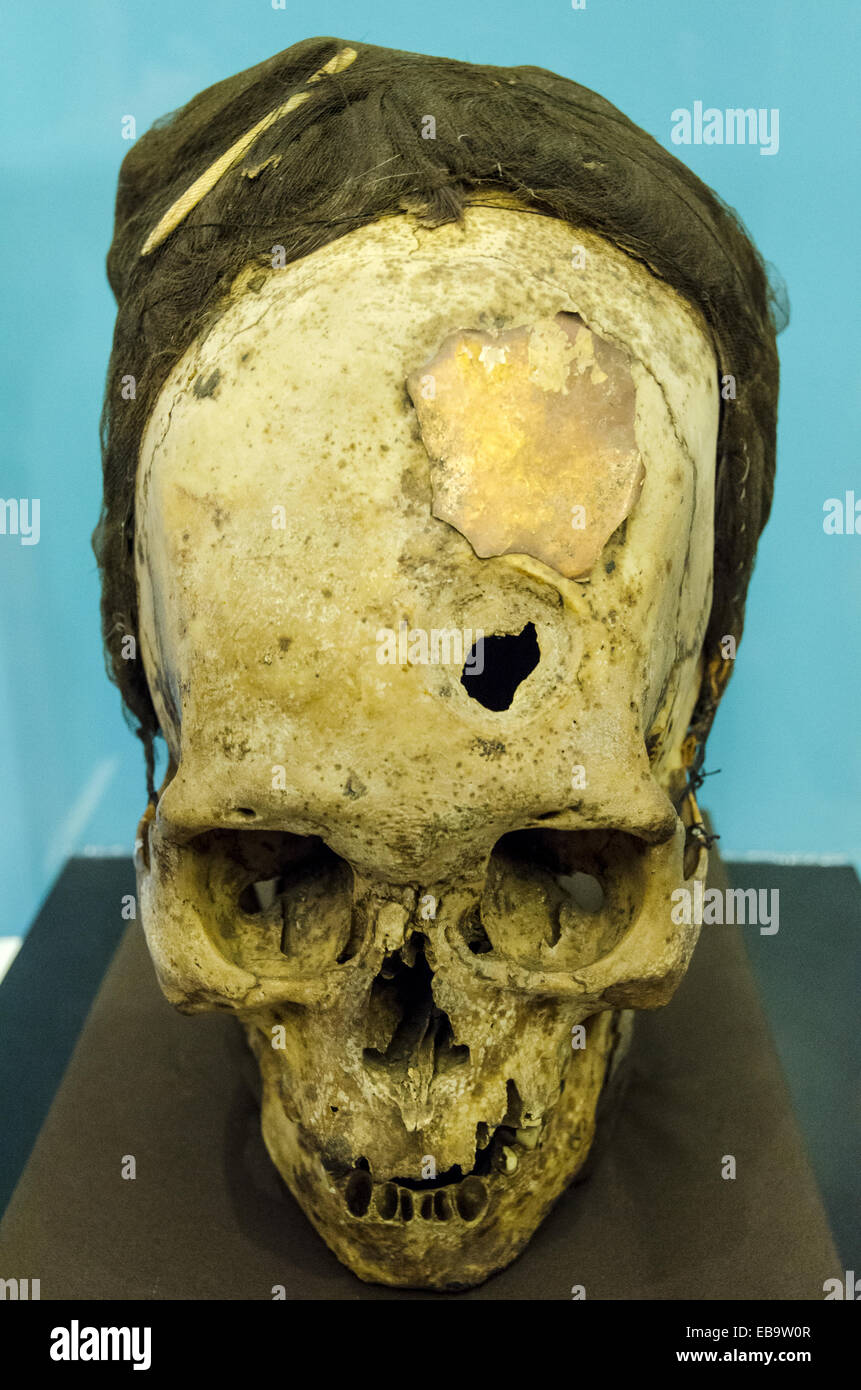 Deformed skulls of Paracas. - Stock Image