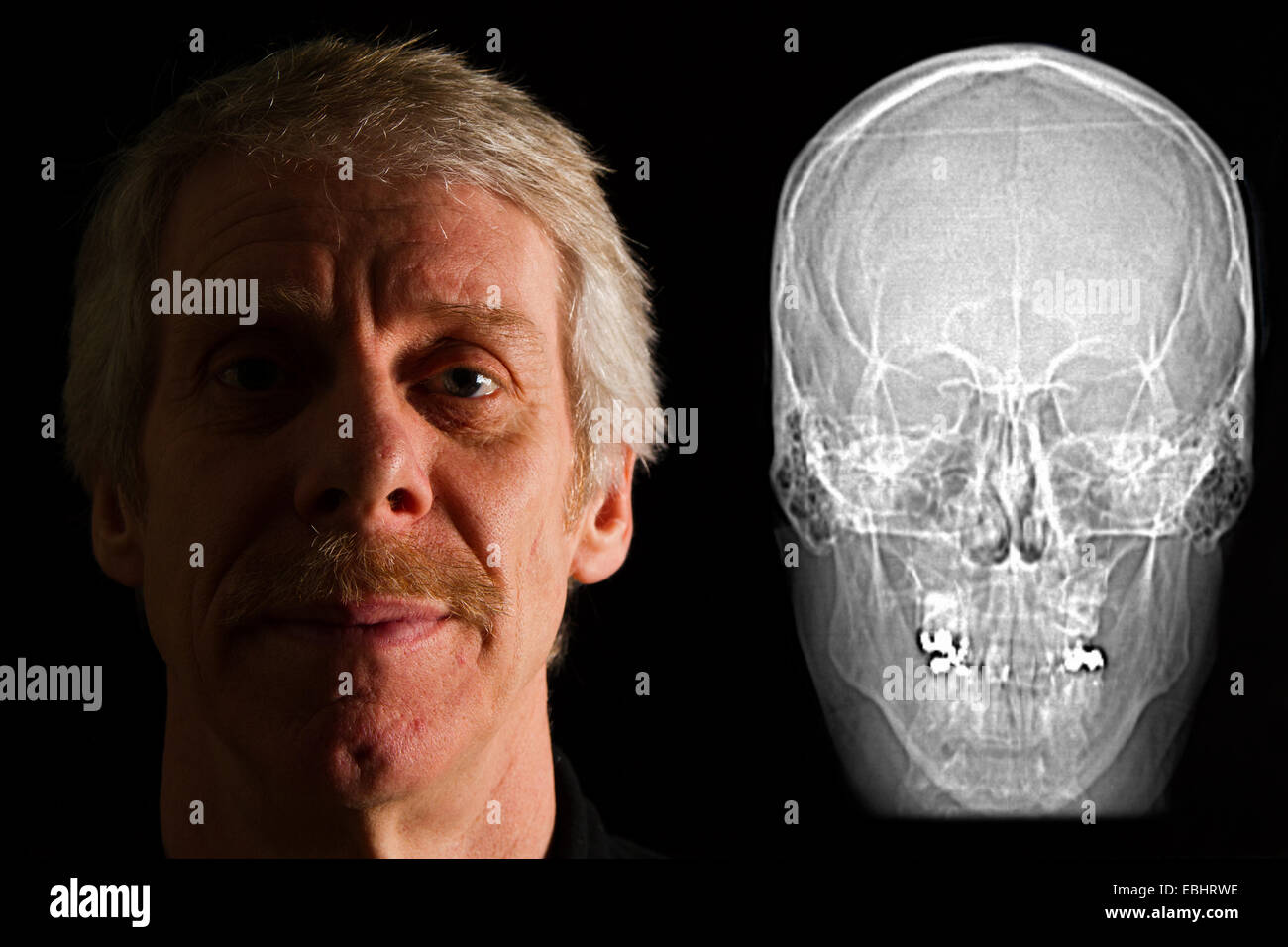 Man beside his CT (Computed Tomography) scan of his head. - Stock Image