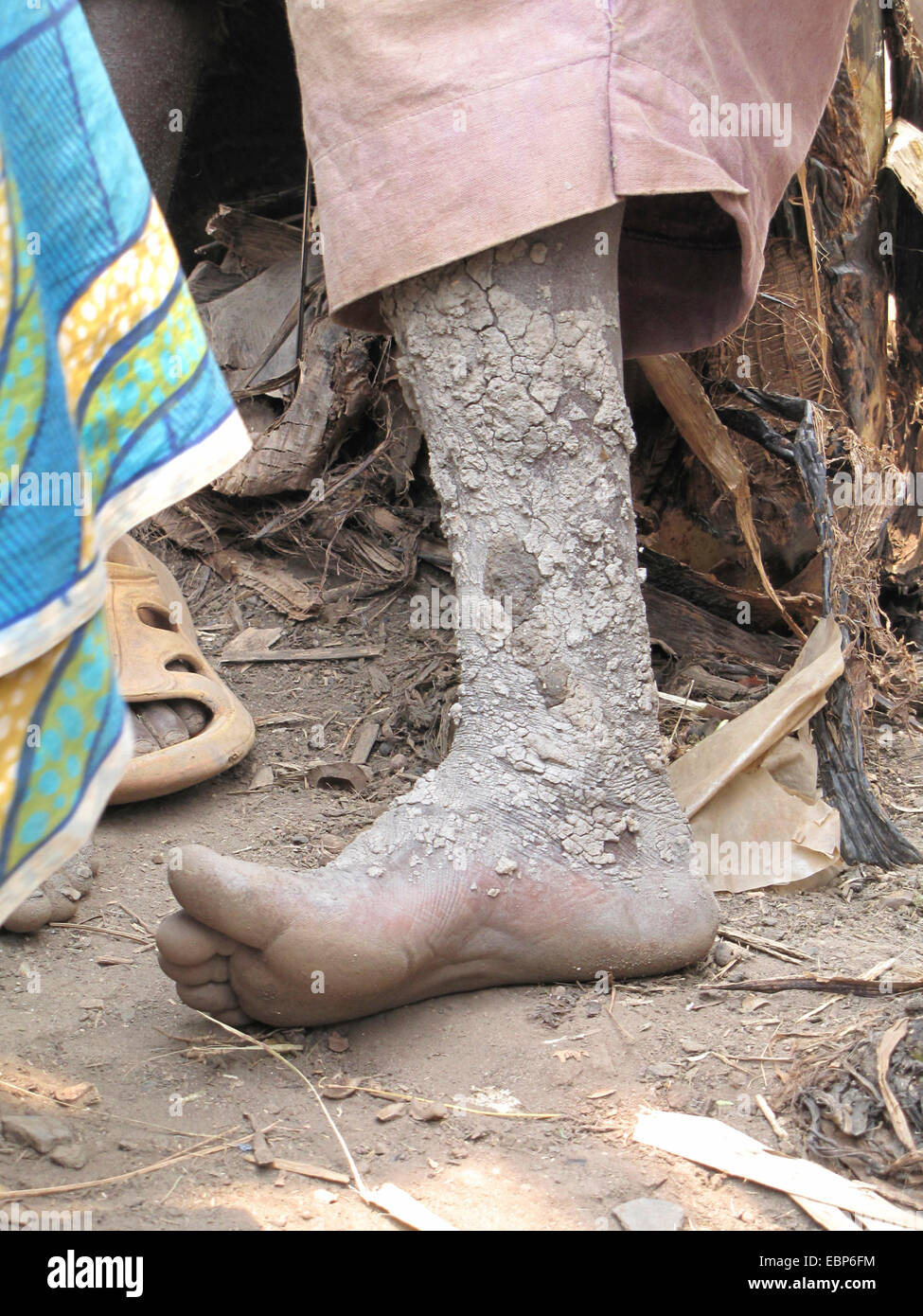 mud-covered leg of a male member of the minority of the Batwa living in a rural area, Burundi, Bujumbura rural, - Stock Image