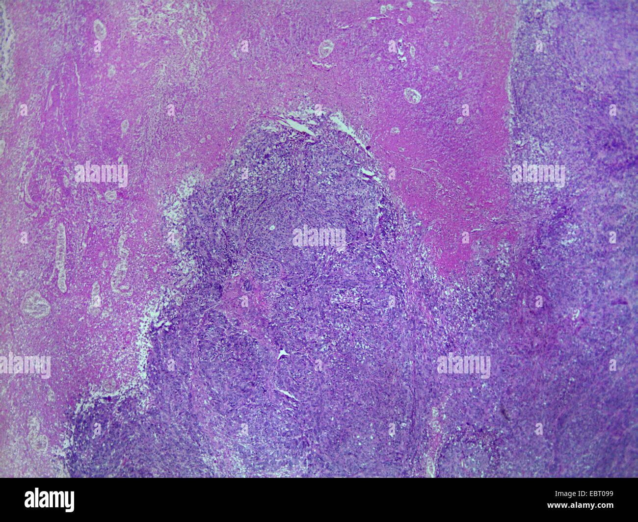 dermal cancer, 40 x - Stock Image