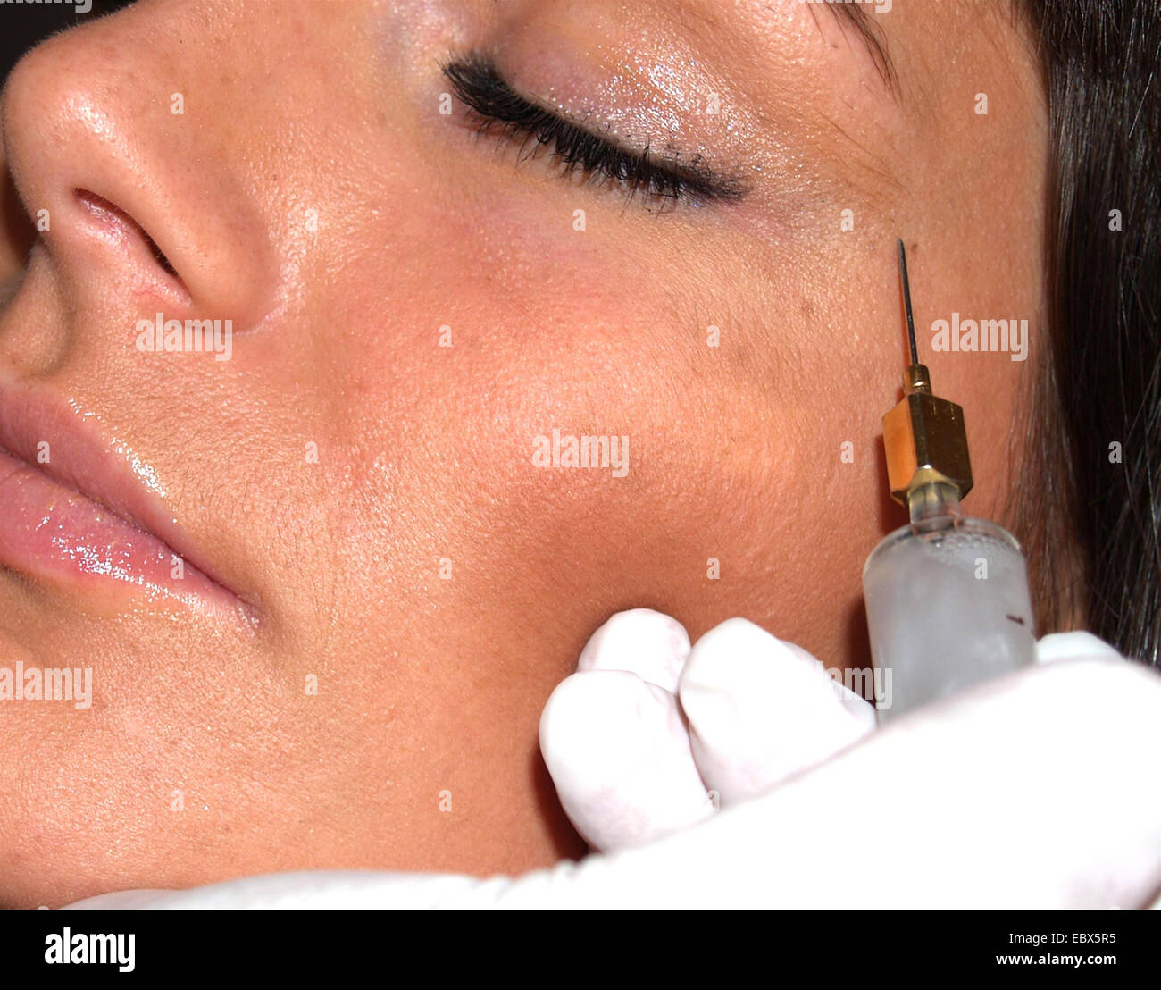 young woman getting a botox injection into the temple - Stock Image