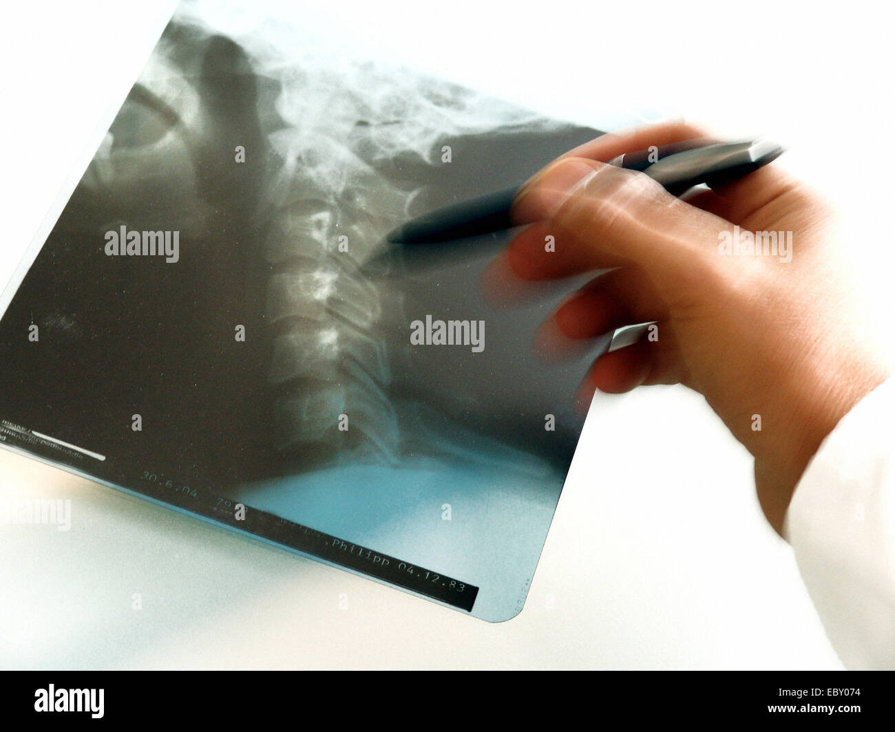 Hand of a physician with radiograph neck split disc - Stock Image