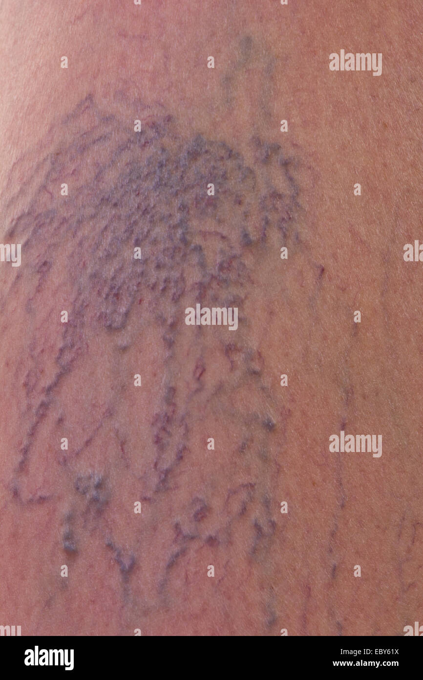 Close-up of dermis with varicose veins - Stock Image