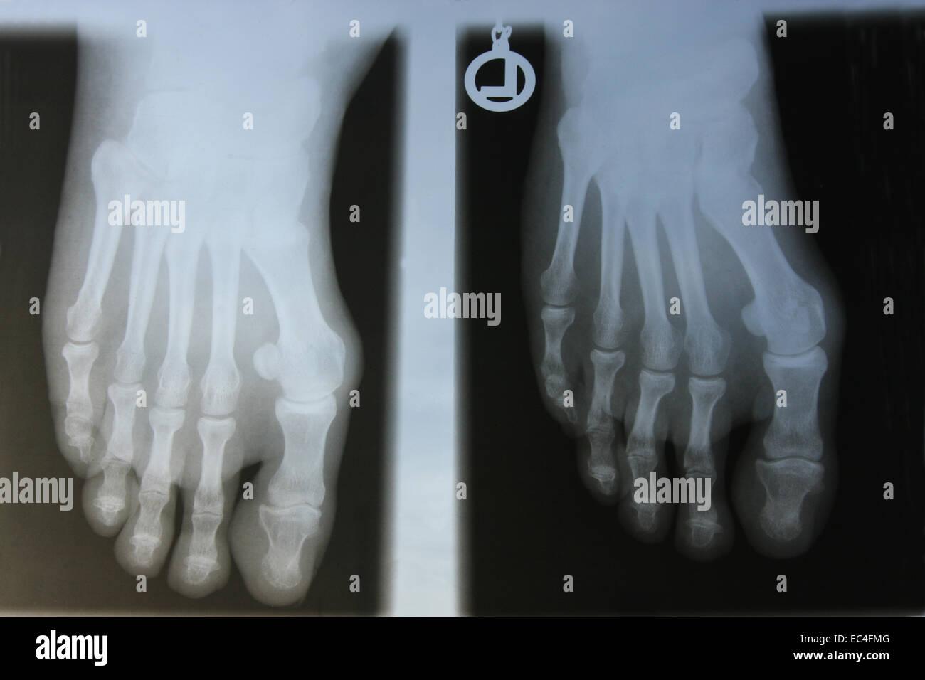 radiograph - Stock Image