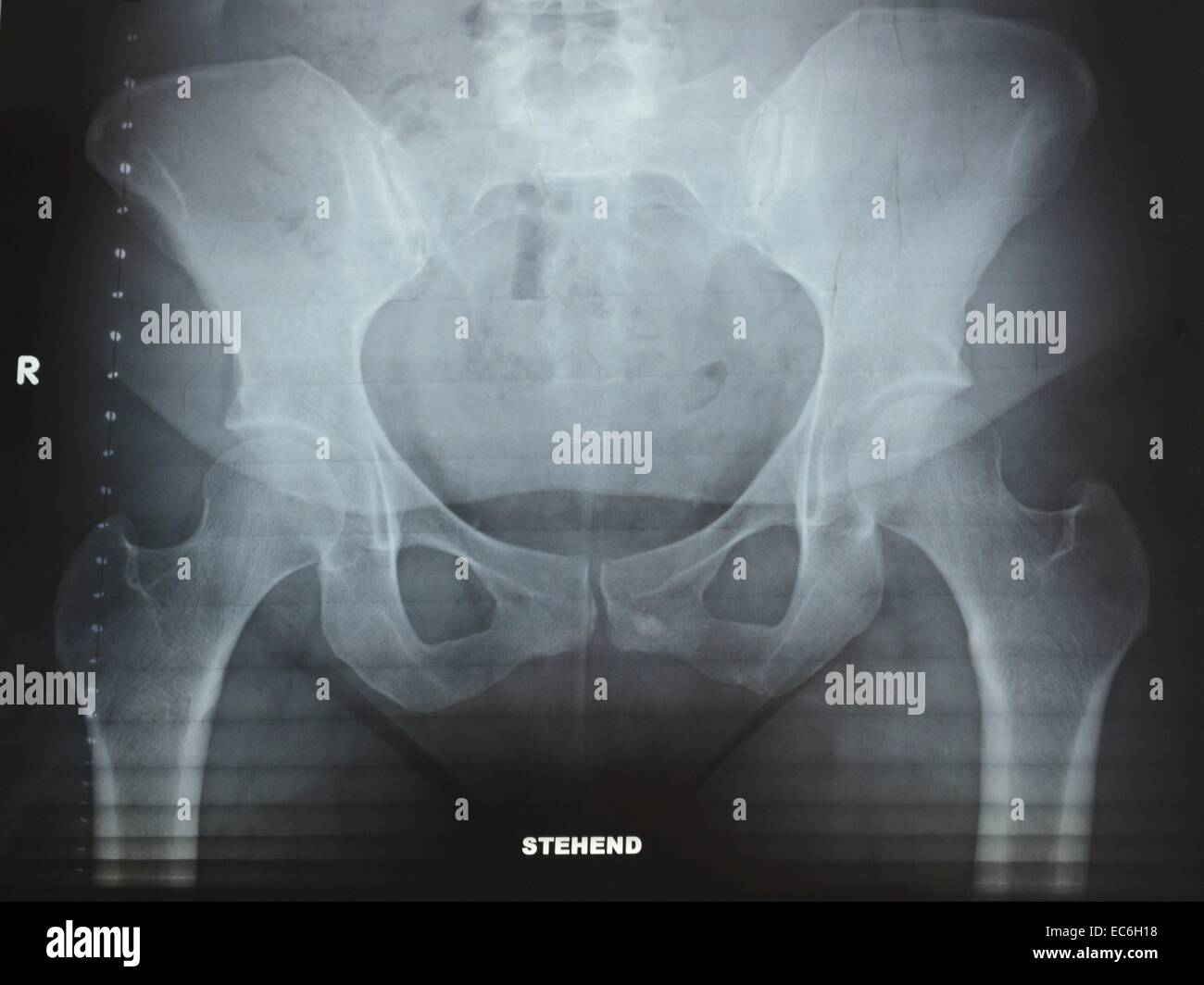 X-ray photograph from pelvis - Stock Image