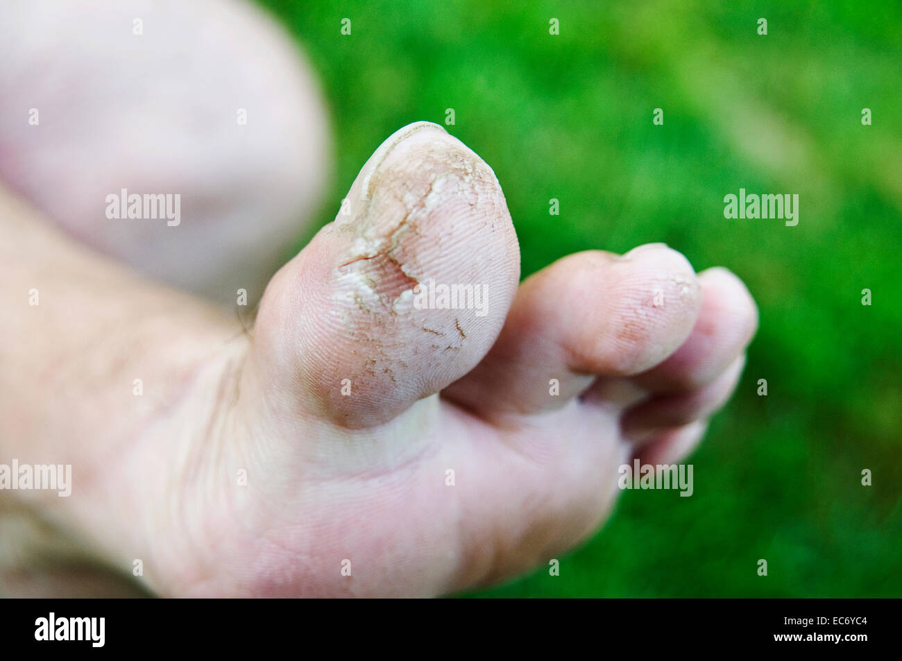 cracked feet - Stock Image