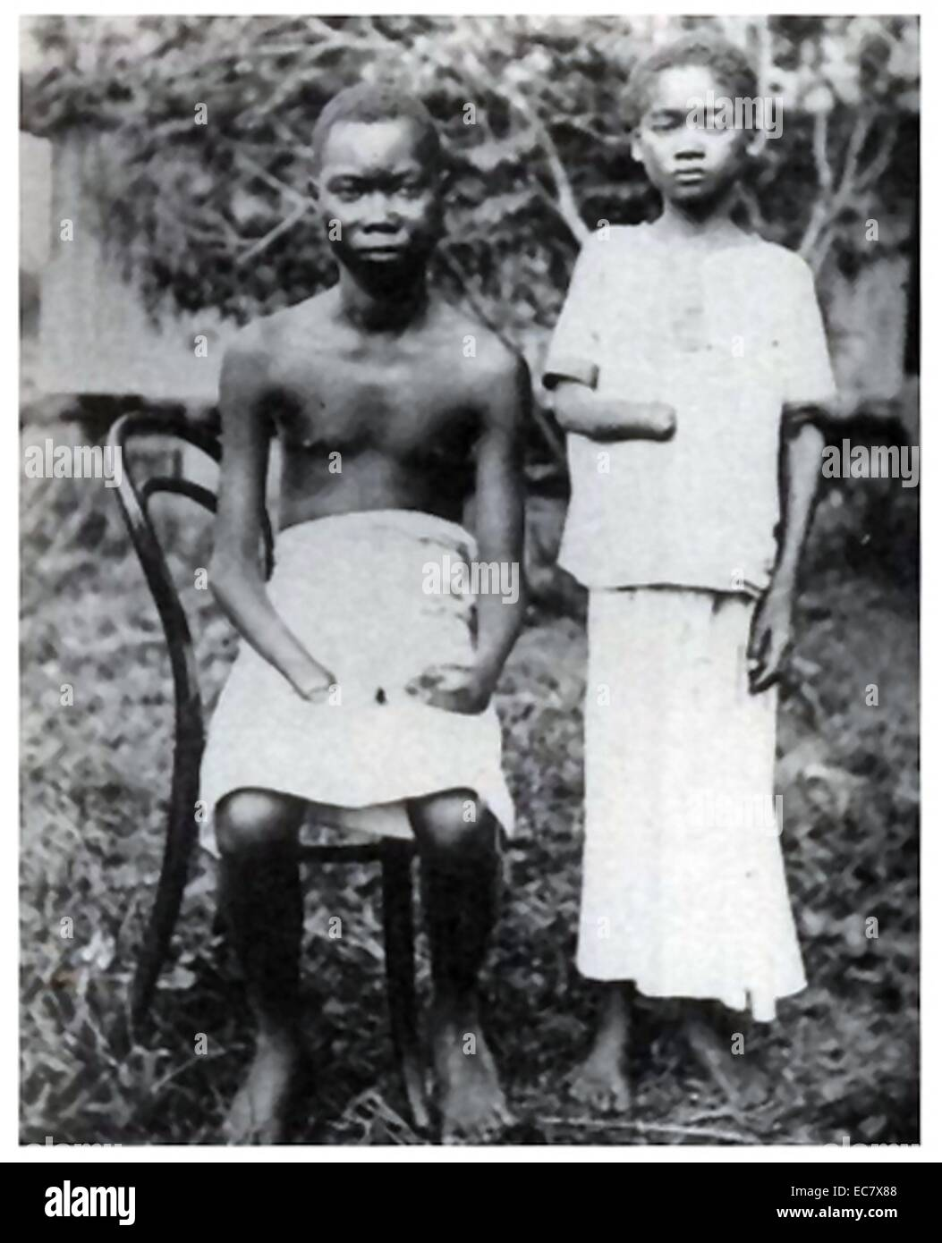Amputation was frequently used to punish workers in the Congo Free State;   controlled by Leopold II of Belgium - Stock Image