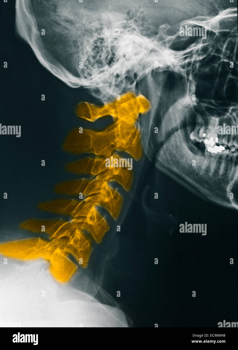 Normal cervical spine x-rays. - Stock Image