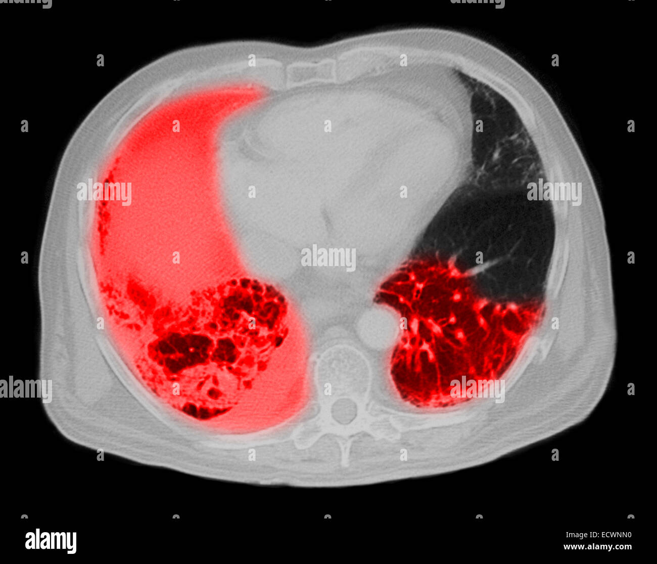 CT scan of the chest showing pneumonia. - Stock Image