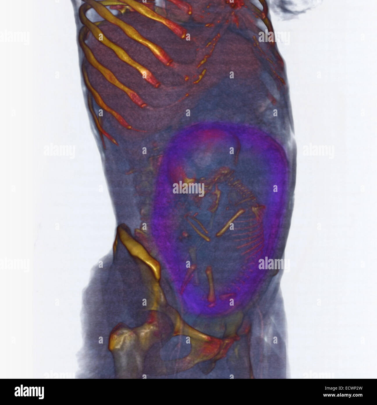 3D CT scan showing a full term fetus in breech position - Stock Image