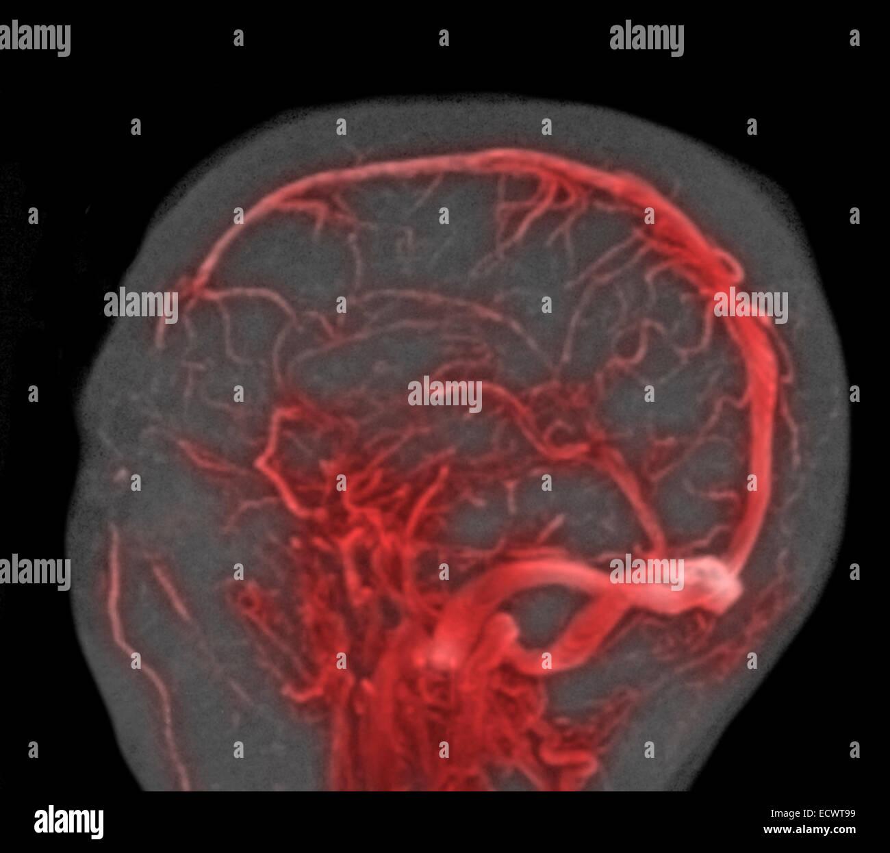Normal MRI study of the brain. - Stock Image