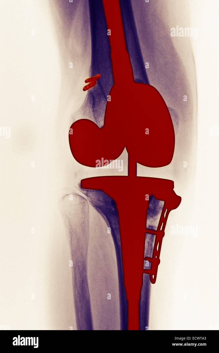 X-ray showing a total knee replacement. - Stock Image