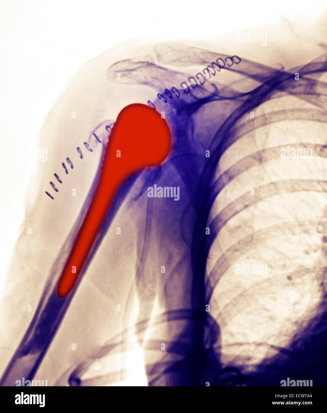x-ray showing a shoulder replacement. - Stock Image