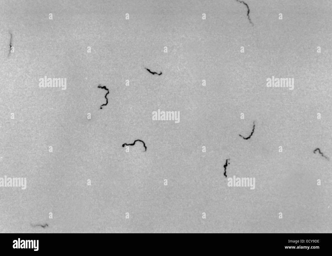 Treponema pallidum shown under dark field light microscopy. - Stock Image