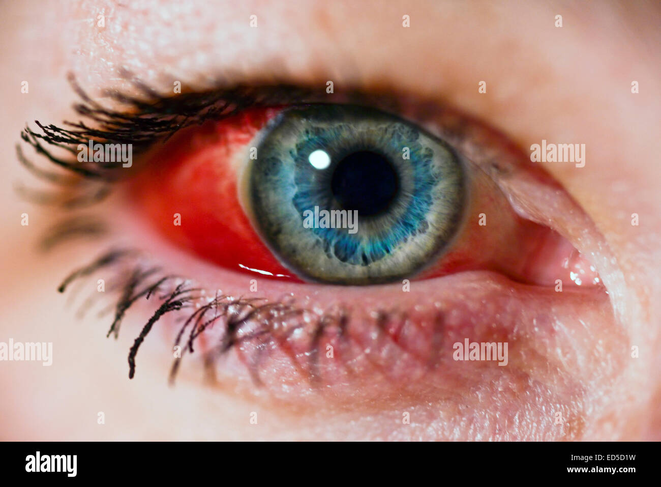 Eye broken blood pictures vessel