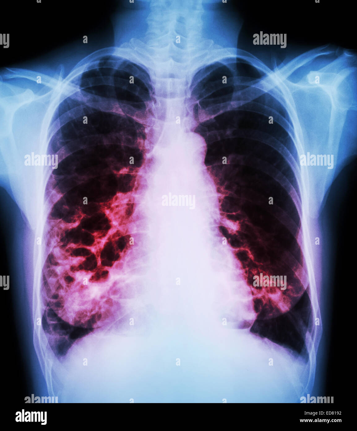 bronchiectasis stock photos amp bronchiectasis stock images
