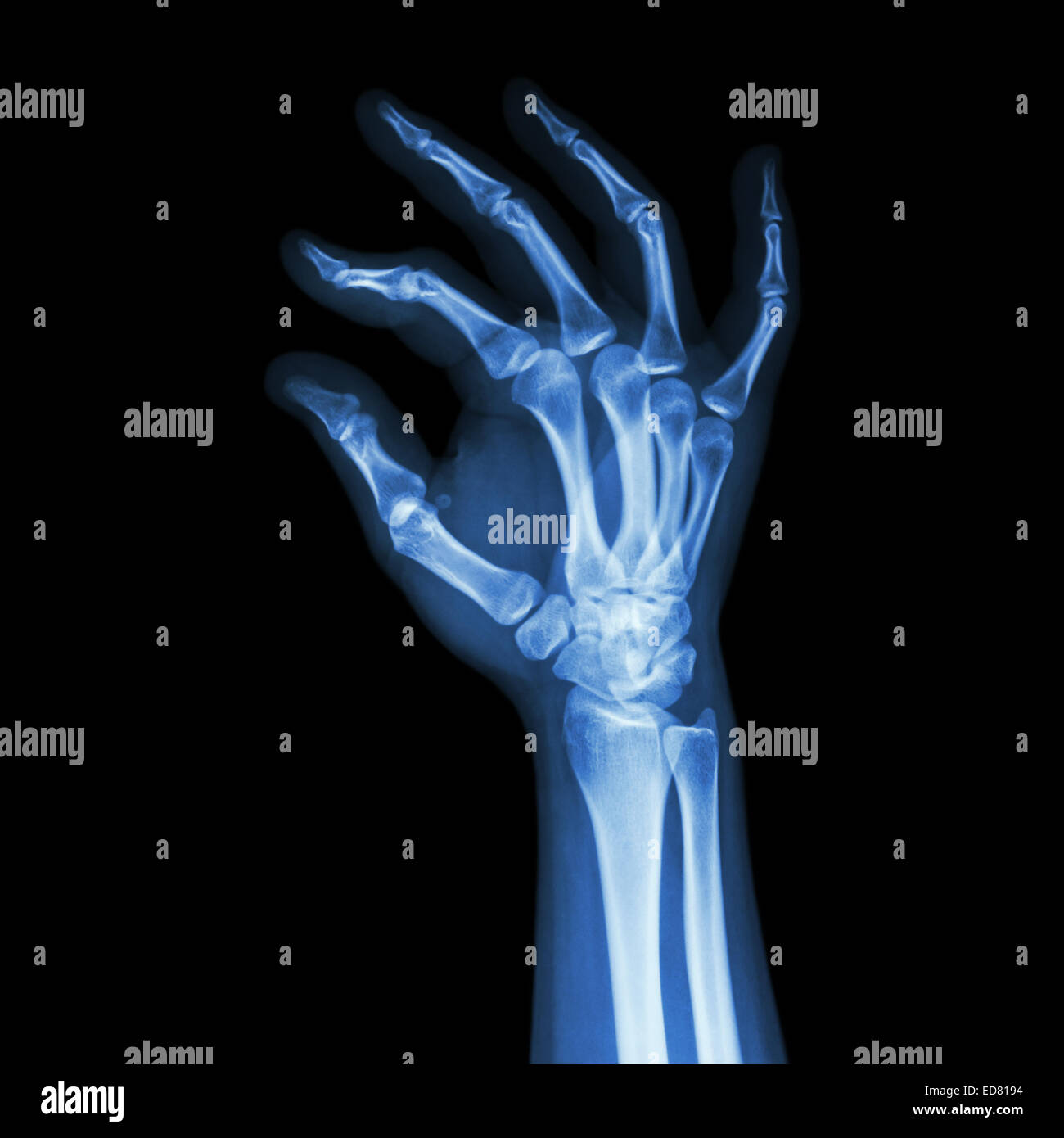 X Ray Of Palm Stock Photos Amp X Ray Of Palm Stock Images