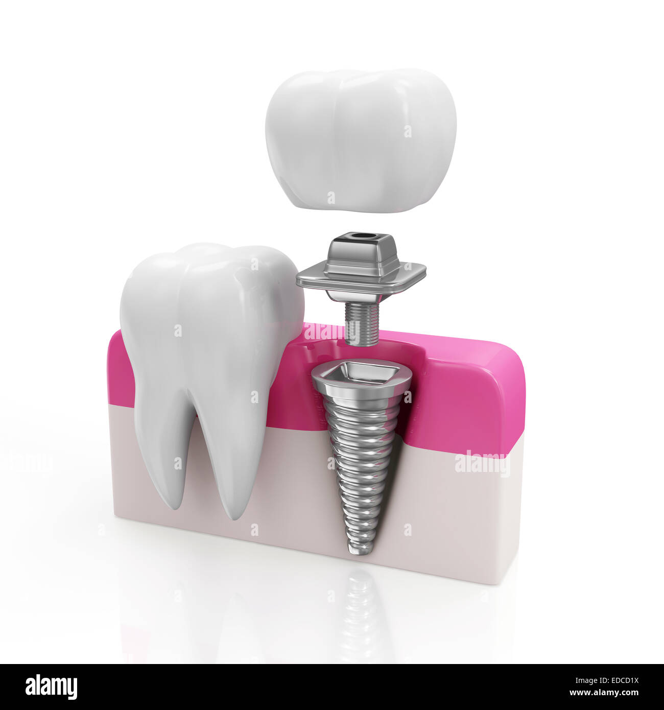 Dentistry Concept. Health Tooth and Dental implant isolated on white background - Stock Image