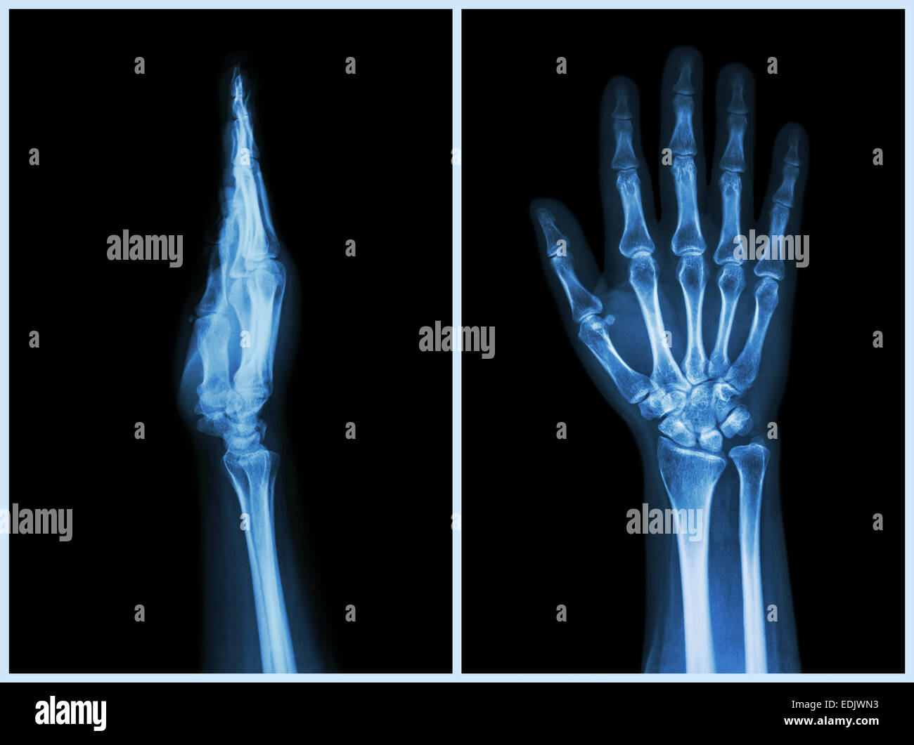 Human Wrist Anatomy Xray View Stock Photos Human Wrist Anatomy