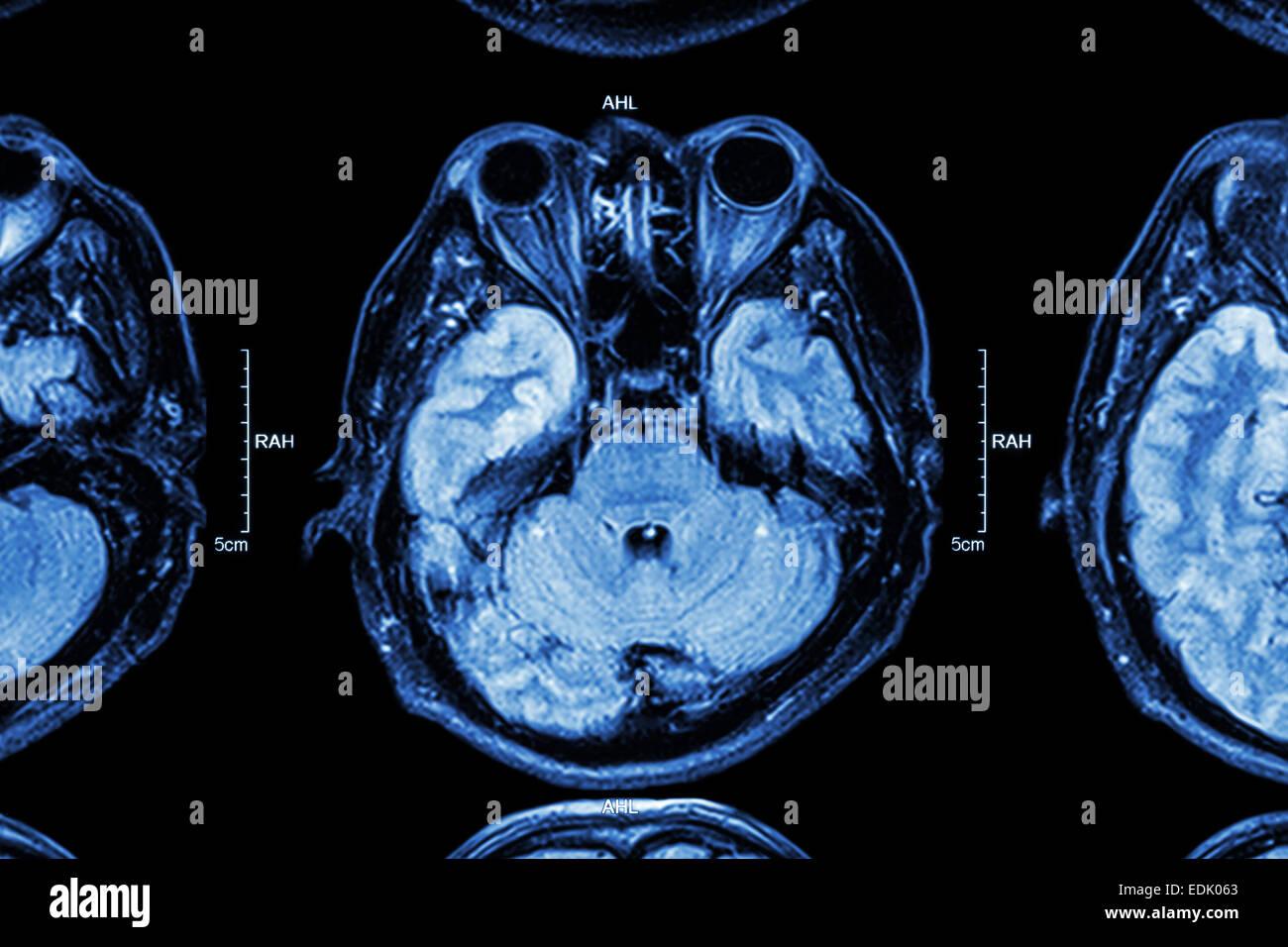 Close up of MRI brain : Lower part of brain ( eyes , temporal lobe of cerebrum , cerebellum , brain stem ) - Stock Image