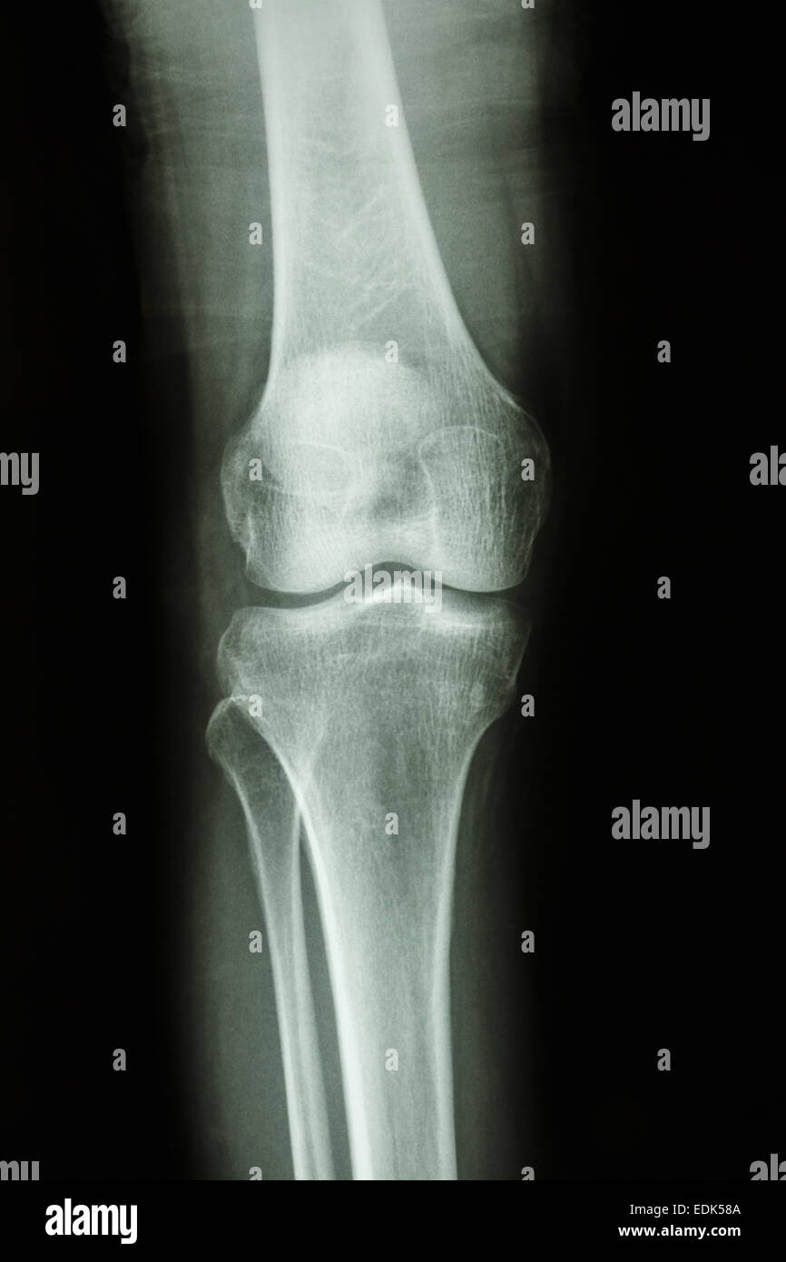 Flim X-ray knee AP : show normal human's knee joint - Stock Image