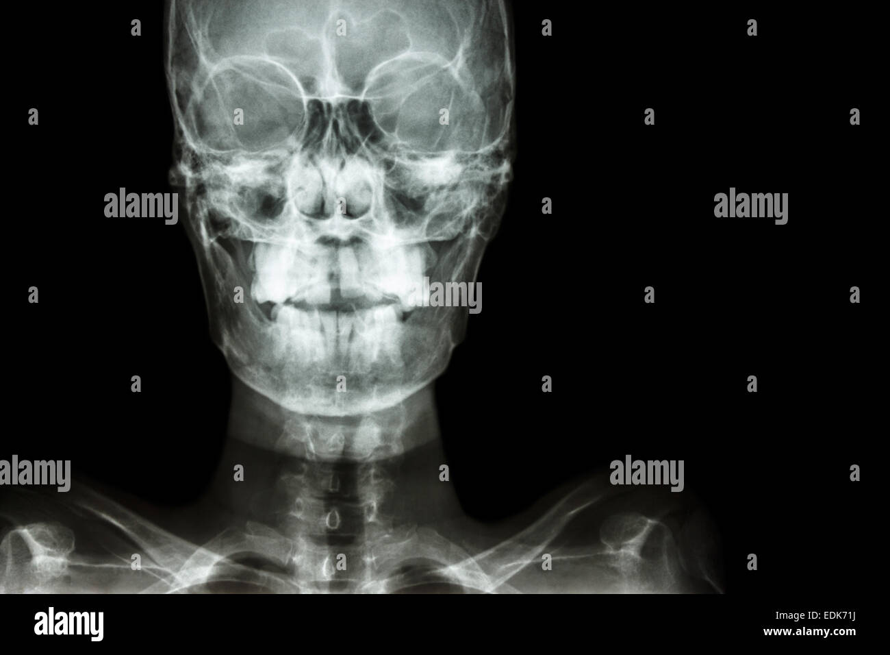 film x-ray Skull AP : show normal human\'s skull and blank area at ...