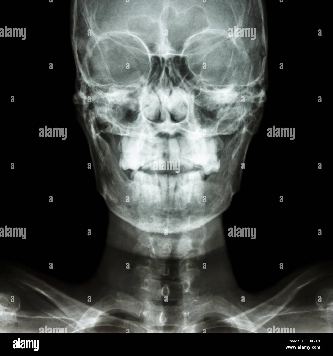film x-ray Skull AP : show normal human's skull and blank ...