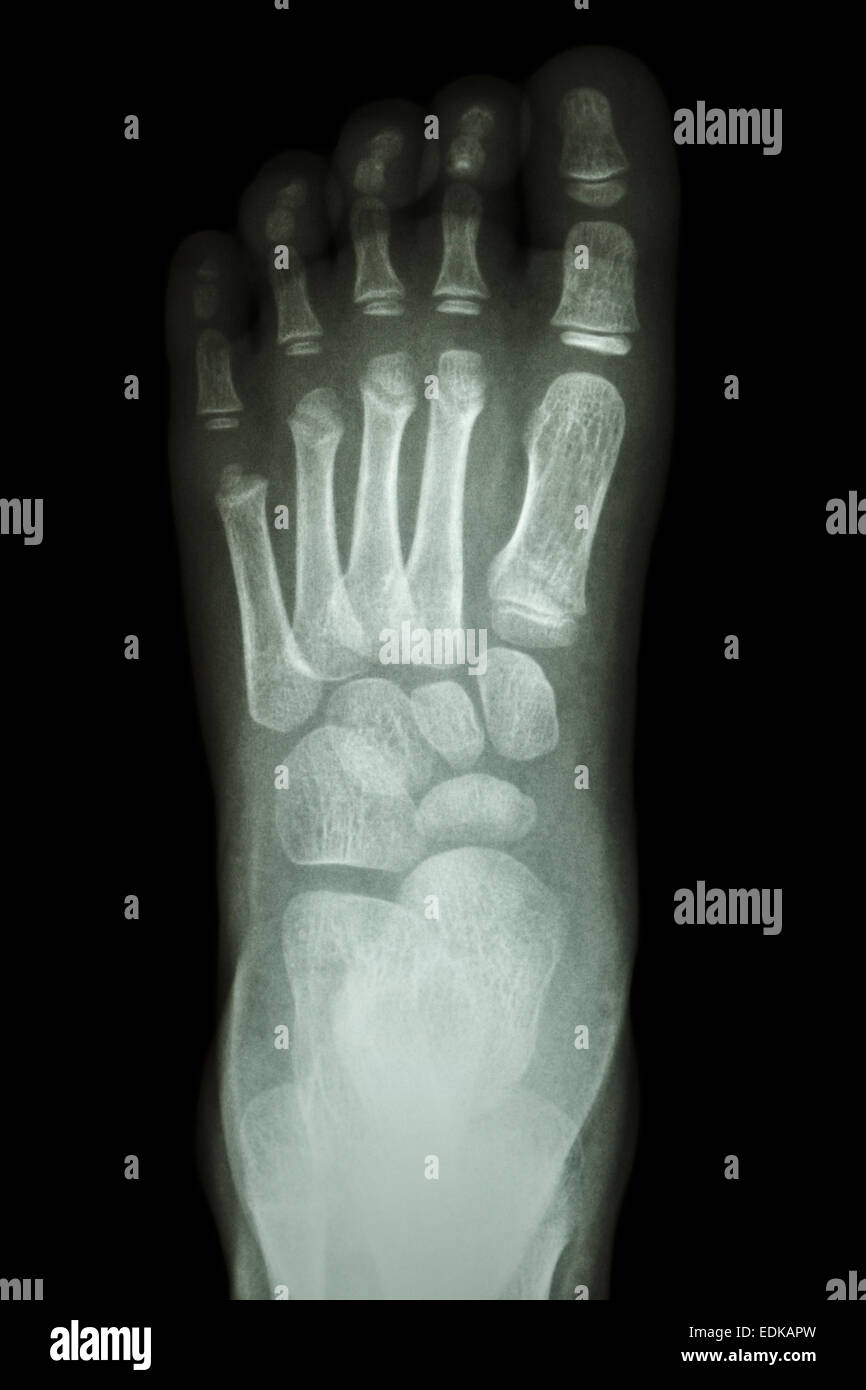 Film X Ray Foot Ap Show Normal Childs Foot Stock Photo 77257569