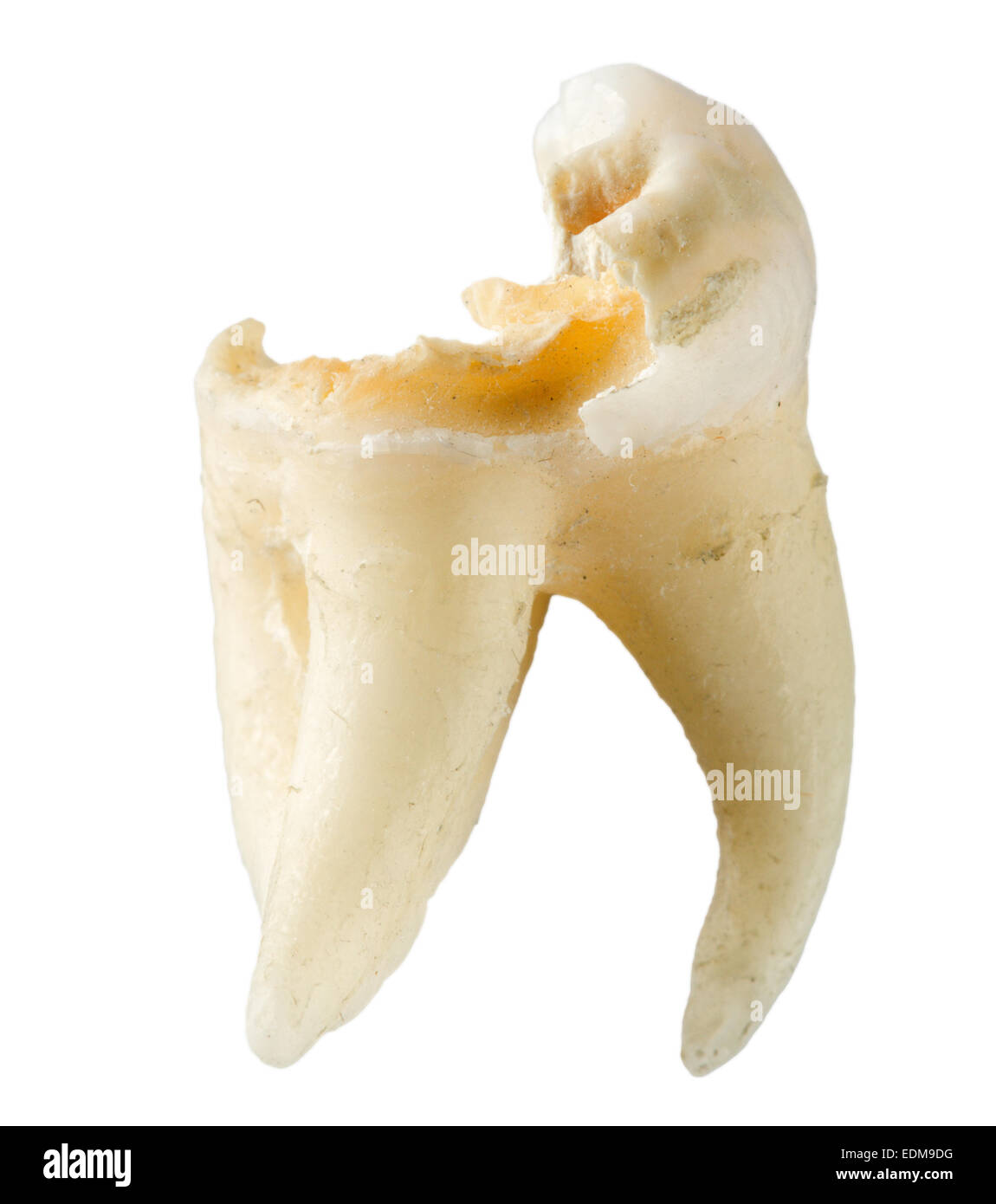 extracted human aching tooth with caries isolated on white background - Stock Image