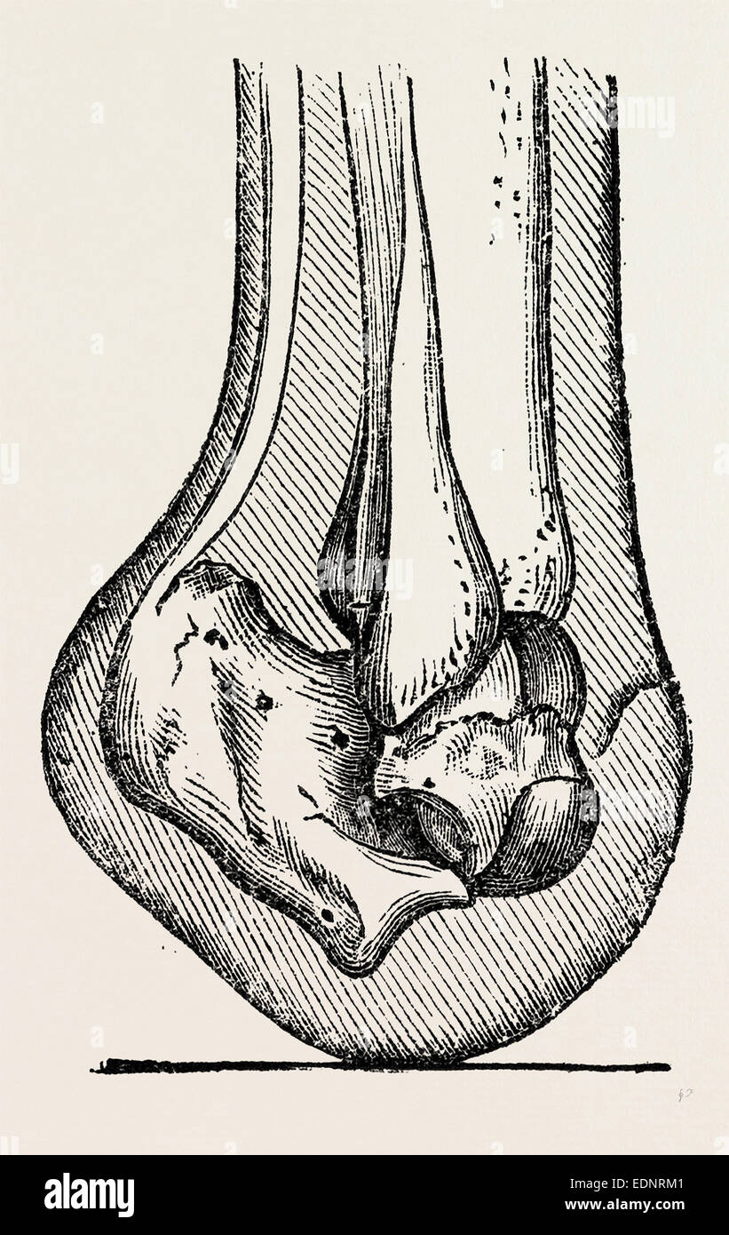 History Of Anatomy Stock Photos & History Of Anatomy Stock Images ...