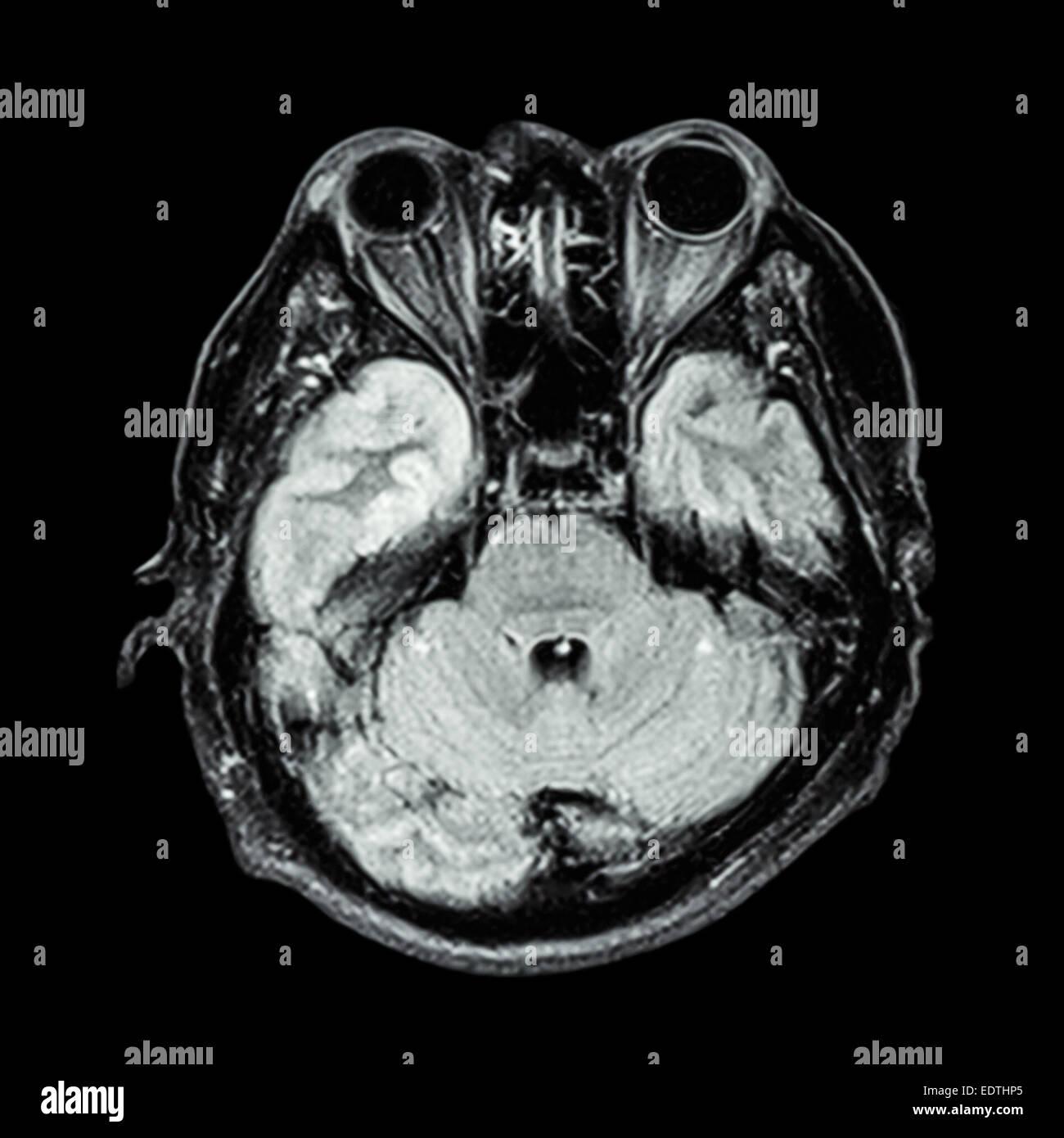 MRI brain : show lower part of brain(cerebellum,temporal lobe of cerebrum,brain stem,eye,ethmoid sinus,structure - Stock Image