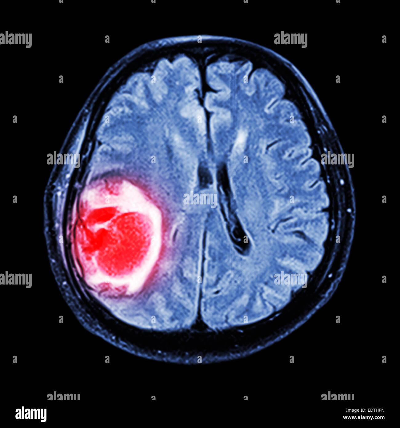 MRI brain : show brain tumor at right parietal lobe of cerebrum - Stock Image