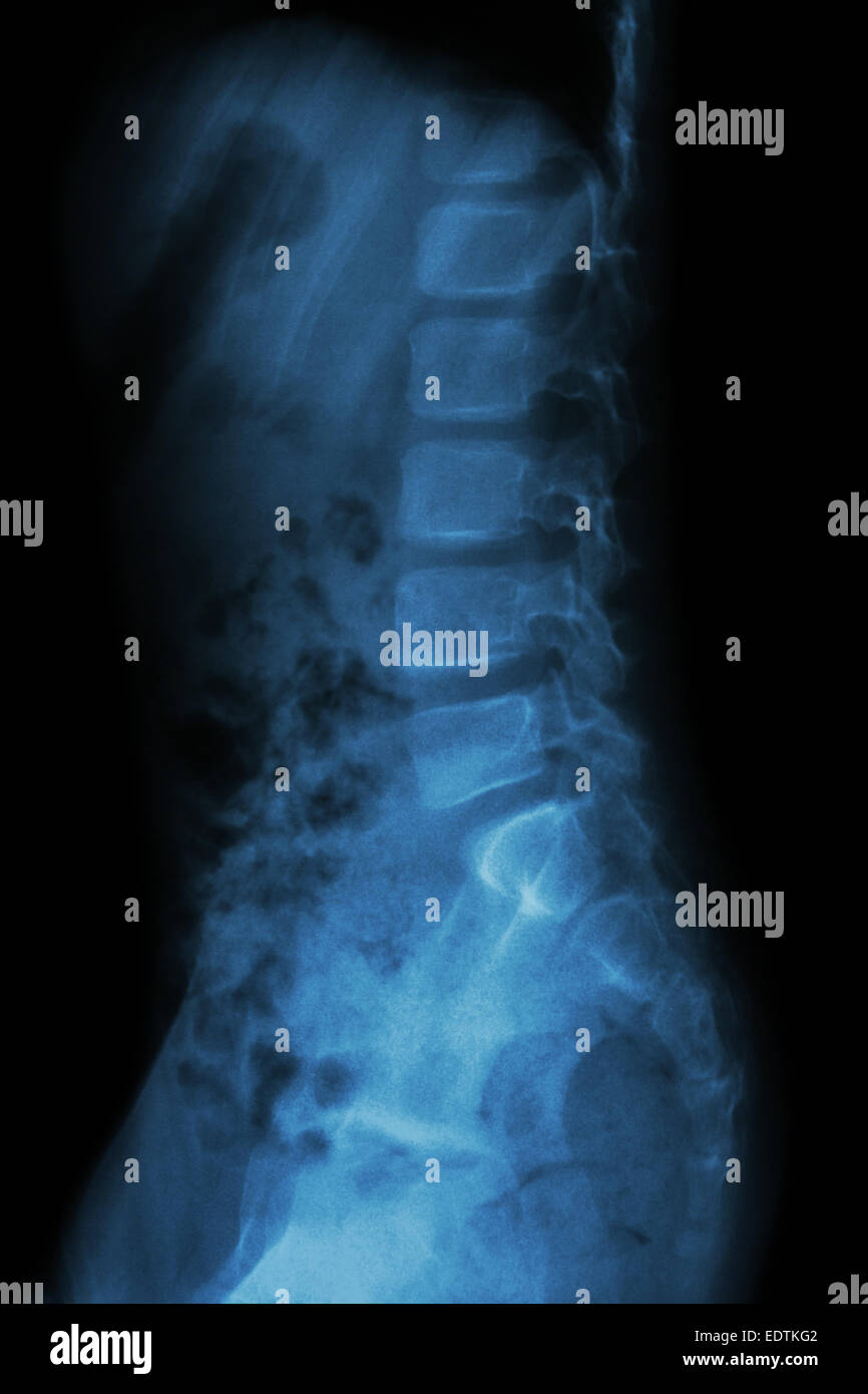 Lumbar Spine Of Child X Ray Thoracic Lumbar Spine Lateral