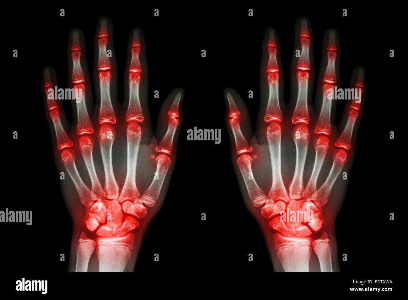 Arthritis Hands Xray Stock Photos & Arthritis Hands Xray Stock ...