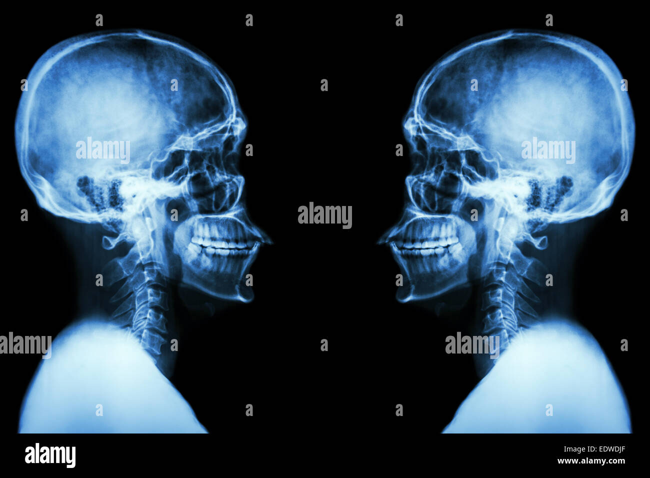 X-ray Skull and cervical spine - Stock Image
