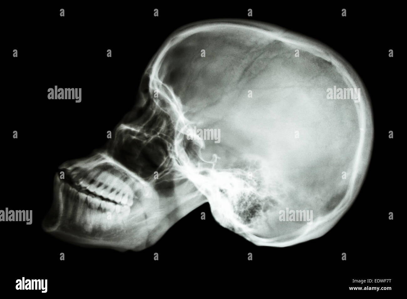 film x-ray skull lateral of asian people (thai people Stock Photo ...