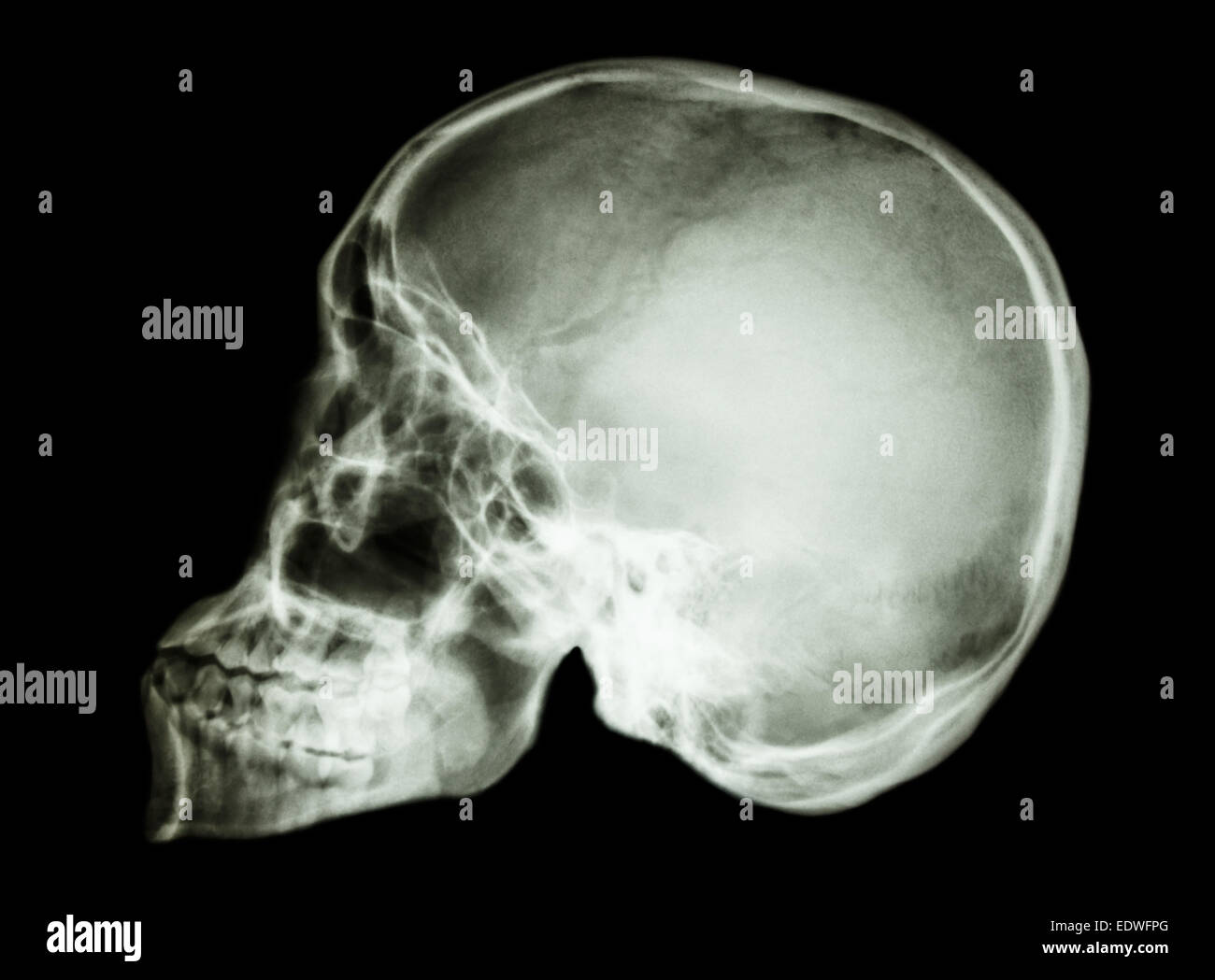 film x-ray skull lateral : show normal human\'s skull Stock Photo ...