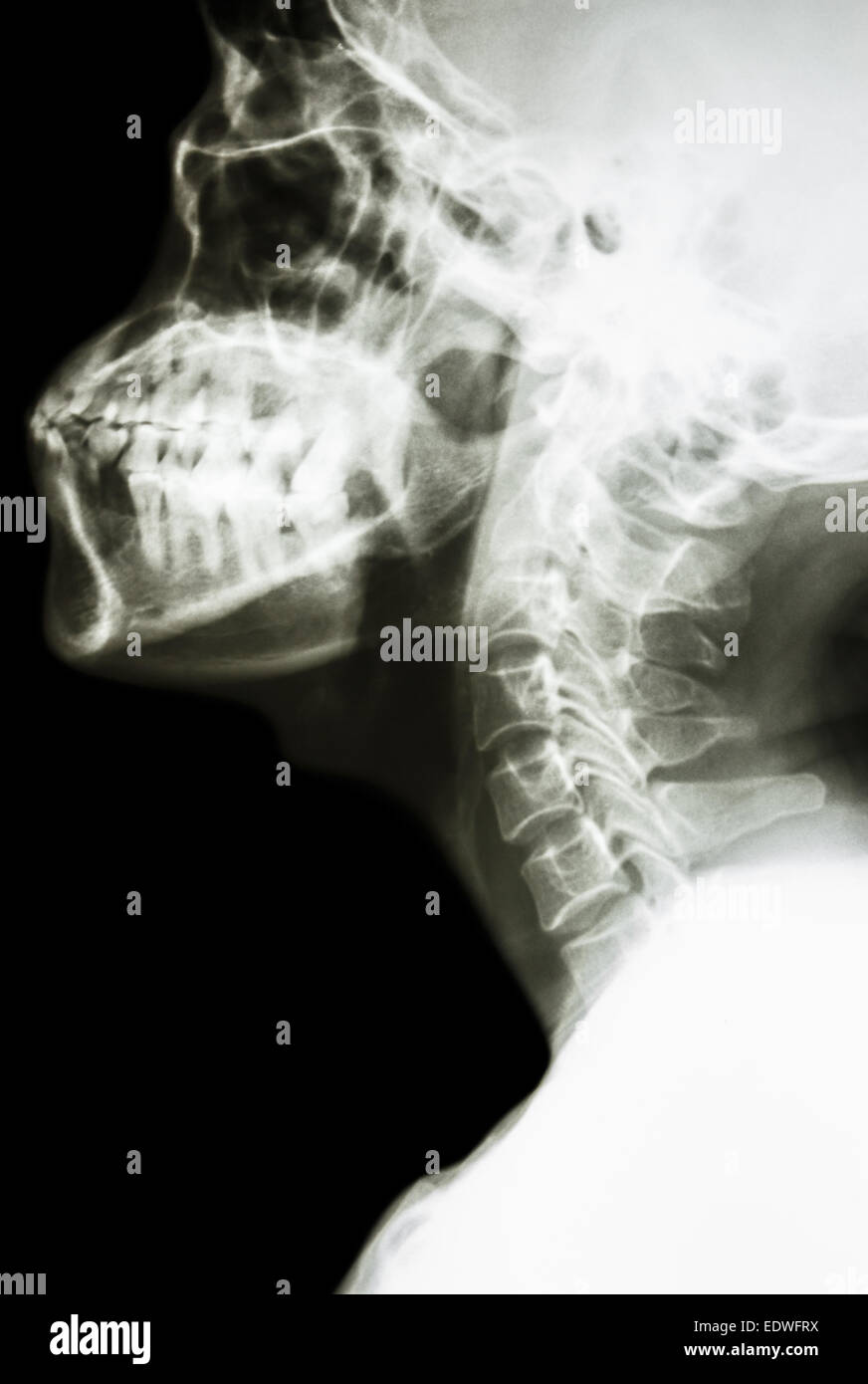 Normal Neck X Ray Stock Photos & Normal Neck X Ray Stock Images - Alamy