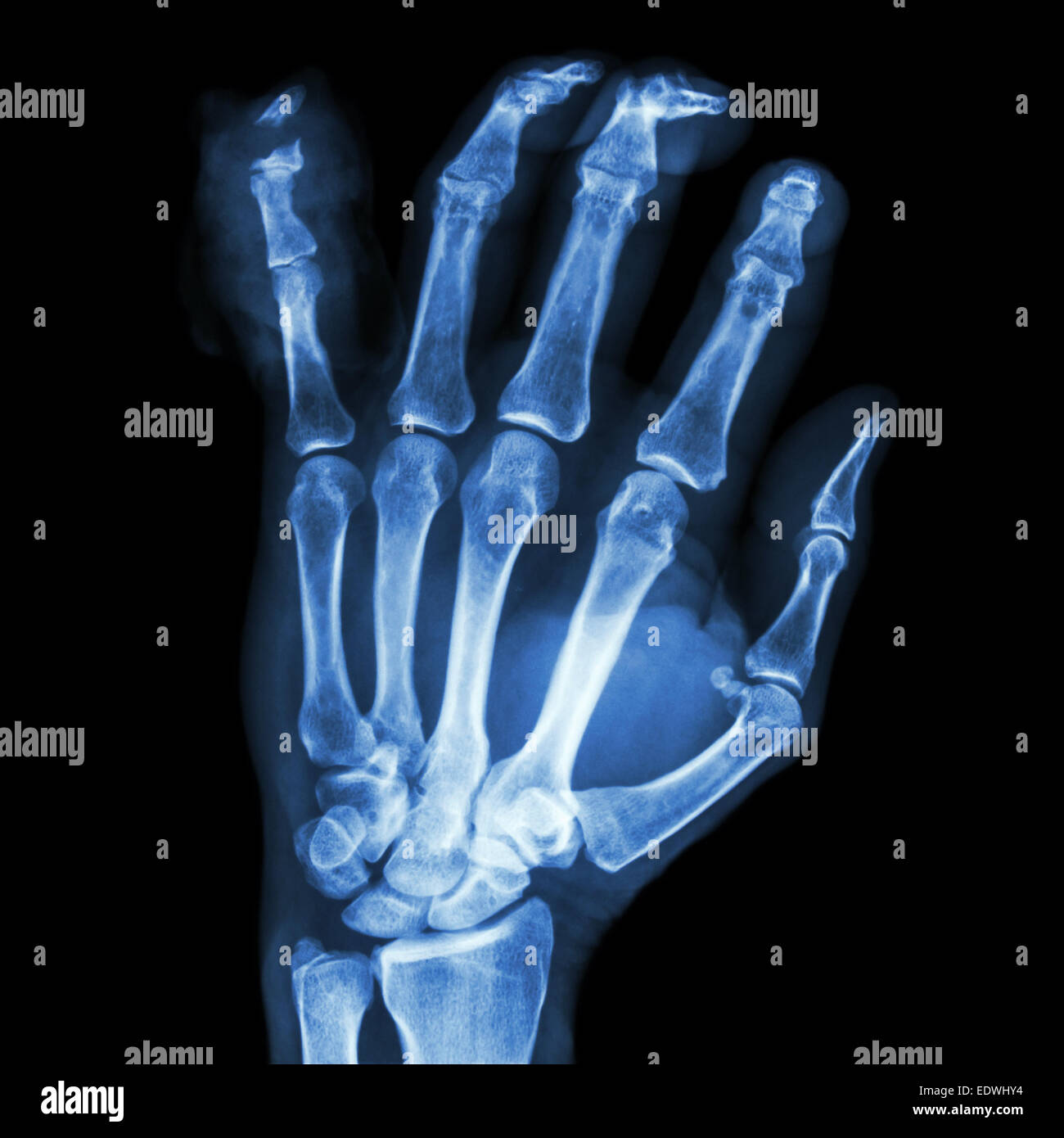 Film X Ray Hand Fracture Show Stock Photos & Film X Ray Hand ...