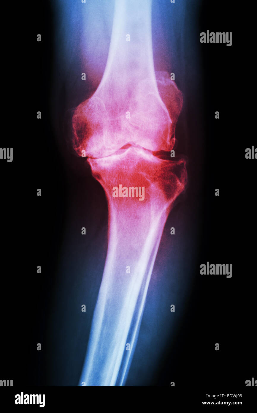 film x-ray knee AP of osteoarthritis knee patient (OA knee) - Stock Image